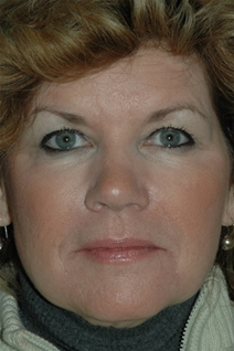 Dermal Fillers After Photo by Lucie Capek, MD; Latham, NY - Case 22418