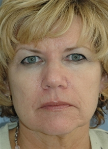Dermal Fillers Before Photo by Lucie Capek, MD; Latham, NY - Case 22418