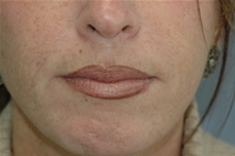 Dermal Fillers After Photo by Lucie Capek, MD; Latham, NY - Case 22420