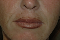 Dermal Fillers Before Photo by Lucie Capek, MD; Latham, NY - Case 22420
