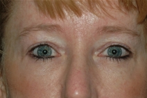 Eyelid Surgery After Photo by Lucie Capek, MD; Latham, NY - Case 22440