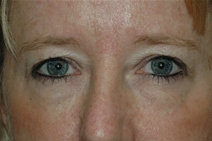 Eyelid Surgery Before Photo by Lucie Capek, MD; Latham, NY - Case 22440