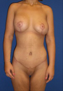 Body Contouring After Photo by Carmen Kavali, MD; Atlanta, GA - Case 25191