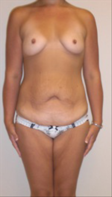 Body Contouring Before Photo by Carmen Kavali, MD; Atlanta, GA - Case 25195