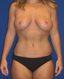 Body Contouring After Photo by Carmen Kavali, MD; Atlanta, GA - Case 25196