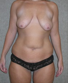 Body Contouring Before Photo by Carmen Kavali, MD; Atlanta, GA - Case 25196