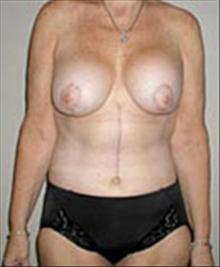 Body Contouring After Photo by Carmen Kavali, MD; Atlanta, GA - Case 25198