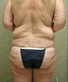 Body Contouring Before Photo by Carmen Kavali, MD; Atlanta, GA - Case 25198