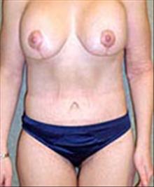 Body Contouring After Photo by Carmen Kavali, MD; Atlanta, GA - Case 25200