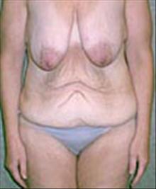 Body Contouring Before Photo by Carmen Kavali, MD; Atlanta, GA - Case 25200