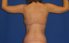 Body Contouring After Photo by Carmen Kavali, MD; Atlanta, GA - Case 25201