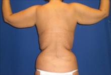 Body Contouring Before Photo by Carmen Kavali, MD; Atlanta, GA - Case 25201