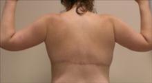 Body Contouring After Photo by Carmen Kavali, MD; Atlanta, GA - Case 25203