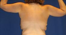Body Contouring Before Photo by Carmen Kavali, MD; Atlanta, GA - Case 25203