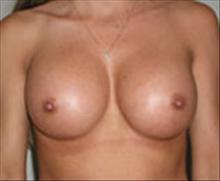 Breast Augmentation After Photo by Carmen Kavali, MD; Atlanta, GA - Case 25353