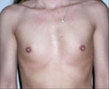 Breast Augmentation Before Photo by Carmen Kavali, MD; Atlanta, GA - Case 25353