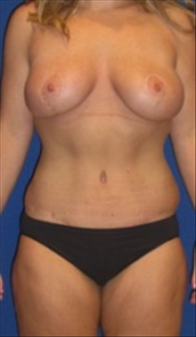Breast Lift After Photo by Carmen Kavali, MD; Atlanta, GA - Case 25354