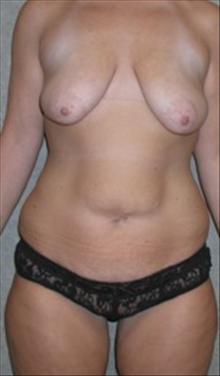 Breast Lift Before Photo by Carmen Kavali, MD; Atlanta, GA - Case 25354