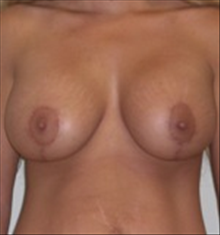 Breast Lift After Photo by Carmen Kavali, MD; Atlanta, GA - Case 25357