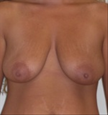 Breast Lift Before Photo by Carmen Kavali, MD; Atlanta, GA - Case 25357