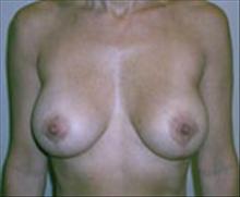 Breast Lift After Photo by Carmen Kavali, MD; Atlanta, GA - Case 25361