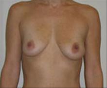 Breast Lift Before Photo by Carmen Kavali, MD; Atlanta, GA - Case 25361