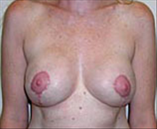 Breast Lift After Photo by Carmen Kavali, MD; Atlanta, GA - Case 25363