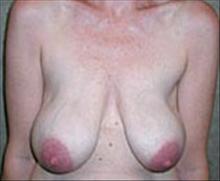 Breast Lift Before Photo by Carmen Kavali, MD; Atlanta, GA - Case 25363