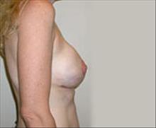 Breast Lift After Photo by Carmen Kavali, MD; Atlanta, GA - Case 25363