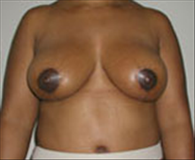Breast Reduction After Photo by Carmen Kavali, MD; Atlanta, GA - Case 25366