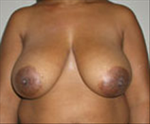 Breast Reduction Before Photo by Carmen Kavali, MD; Atlanta, GA - Case 25366