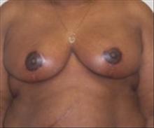 Breast Reduction After Photo by Carmen Kavali, MD; Atlanta, GA - Case 25367