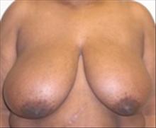 Breast Reduction Before Photo by Carmen Kavali, MD; Atlanta, GA - Case 25367