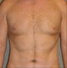 Male Breast Reduction After Photo by Carmen Kavali, MD; Atlanta, GA - Case 25369