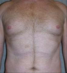 Male Breast Reduction Before Photo by Carmen Kavali, MD; Atlanta, GA - Case 25369