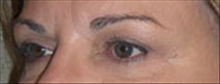 Eyelid Surgery After Photo by Carmen Kavali, MD; Atlanta, GA - Case 25373