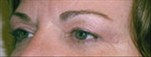 Eyelid Surgery Before Photo by Carmen Kavali, MD; Atlanta, GA - Case 25373