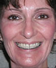 Eyelid Surgery After Photo by Carmen Kavali, MD; Atlanta, GA - Case 25374