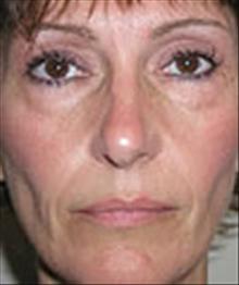 Eyelid Surgery Before Photo by Carmen Kavali, MD; Atlanta, GA - Case 25374