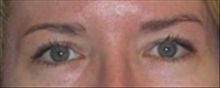 Eyelid Surgery After Photo by Carmen Kavali, MD; Atlanta, GA - Case 25375