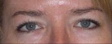 Eyelid Surgery Before Photo by Carmen Kavali, MD; Atlanta, GA - Case 25375