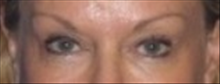 Eyelid Surgery After Photo by Carmen Kavali, MD; Atlanta, GA - Case 25376