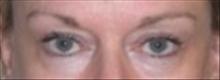 Eyelid Surgery Before Photo by Carmen Kavali, MD; Atlanta, GA - Case 25376