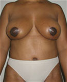 Breast Lift After Photo by Carmen Kavali, MD; Atlanta, GA - Case 25378