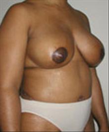 Breast Lift After Photo by Carmen Kavali, MD; Atlanta, GA - Case 25378