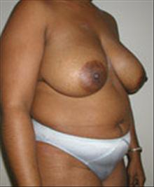 Breast Lift Before Photo by Carmen Kavali, MD; Atlanta, GA - Case 25378