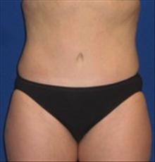 Tummy Tuck After Photo by Carmen Kavali, MD; Atlanta, GA - Case 25383