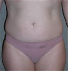 Tummy Tuck Before Photo by Carmen Kavali, MD; Atlanta, GA - Case 25383