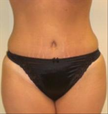 Tummy Tuck After Photo by Carmen Kavali, MD; Atlanta, GA - Case 25384
