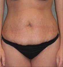 Tummy Tuck Before Photo by Carmen Kavali, MD; Atlanta, GA - Case 25384